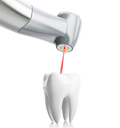 Laser Dentistry, North York Toronto Dentist